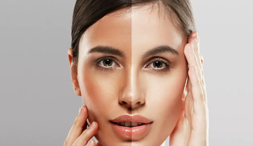The Urge To Get Fair Complexion With Skin Lightening