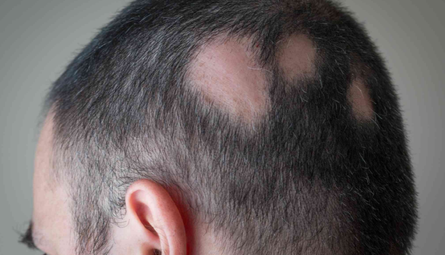 Traction Alopecia Treatment – How To Reduce Scalp Stress